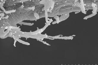 الخلايا المصابة بـ كوفيد-19 (1)